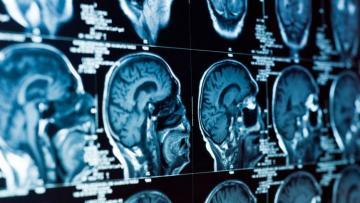 Японские ученые оживили мертвый мозг