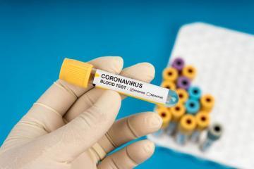 32 new coronavirus cases detected in Kazakhstan, total at 759