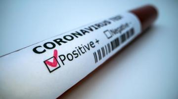 В США создали прибор мгновенного выявления коронавируса