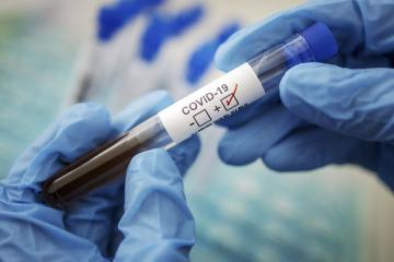Georgia's coronavirus cases reach 794