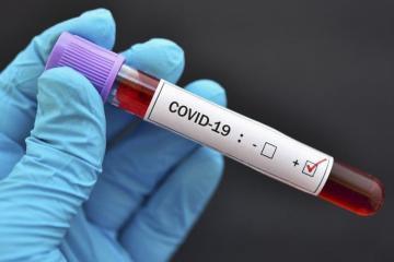 Gürcüstanda koronavirusa yoluxanların sayı 40 mini ötüb