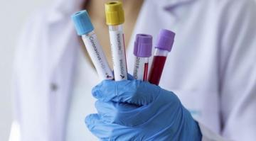 Gürcüstanda son sutka ərzində koronavirusa 4426 nəfər yoluxub, 35 nəfər ölüb