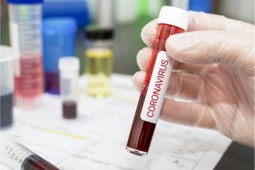 За сутки в Грузии коронавирусом заразились 1731 человек, умерли 15 человек