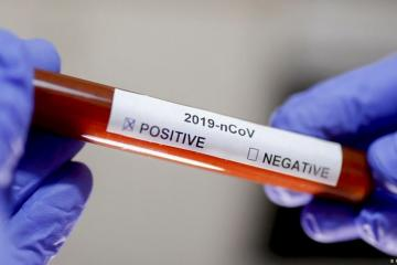 Georgia records 218 more coronavirus cases, 2 deaths